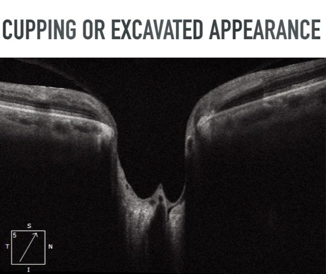 Glaucomatous cupping  excavated appearance optic nerve damage