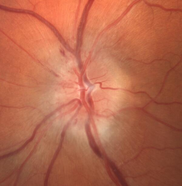 IDIOPATHIC INTRACRANIAL HYPERTENSION PAPILLEDEMA OPTIC NEUROPATHY RESTORE VISION CLINIC