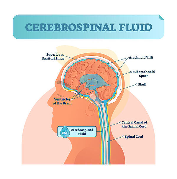 Hydrocephalus Intracranial Pressure Cerebrospinal fluid Optic Nerve Treatment Restore Vision Clinic