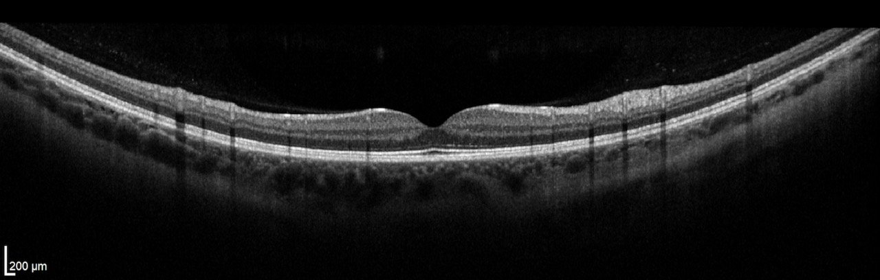 OCT examination healthy retina. Retinal cells