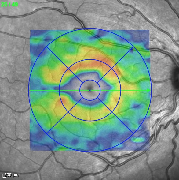 Hereditary degeneration of the optic nerve
