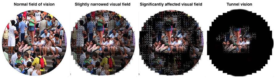 Visual Field affected by Retinitis  Pigmentosa Narrow VF tunnel vision