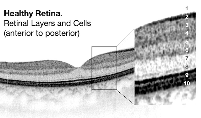Structure of the retina, photoreceptors, cones rods RP, retinal layers