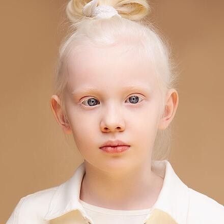 Ocular albinism as hypopigmentation of the pigmented areas of the eye