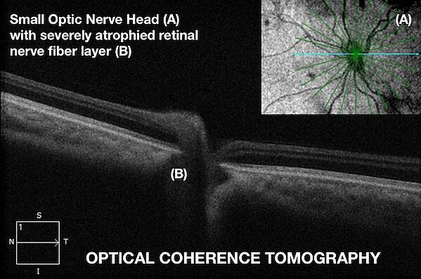 Optic Nerve Hypoplasia  OPTICAL COHERENCE TOMOGRAPHY Fedorov Restore Vision Clinic