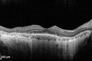 OCT Retinitis Pigmentosa. Advanced stage Severe rod atrophy Retinal RPE retinal pigment epithelium atrophy