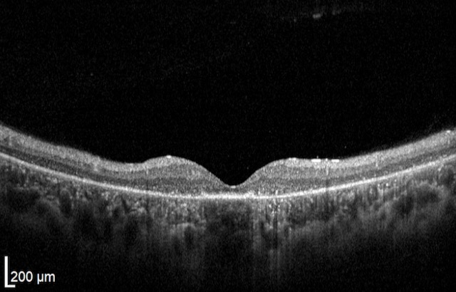 OCT Retinitis Pigmentosa. Severe stage Rod Dystrophy Fedorov Restore Vision Clinic