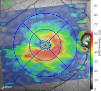 OCT inital  atrophy ofretinal ganglion cells glaucoma