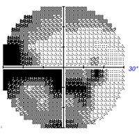 retinitis-pigmentosa-treatment--eight-months-follow-up