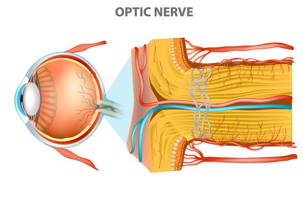 ischemic optic neuropathy ischemia anterior portion optic nerve Sleep Apnea