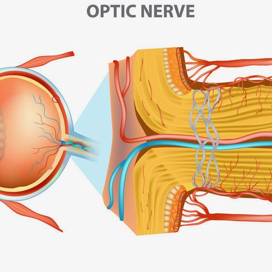 ischemic optic neuropathy ischemia anterior portion optic nerve Sleep Apnea