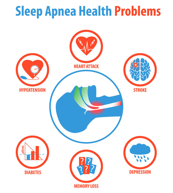 obstructive sleep apnea health related complications diseases